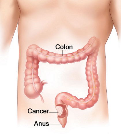 Cancer de colon - tratament